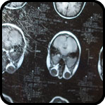 Brain Scan